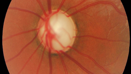 1758973019_glaucoma1.png